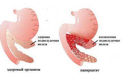 Можно ли отравиться медом: симптомы и первая мед помощь при передозировке, мед при пищевом отравлении