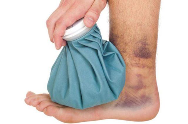 Лечение вывиха суставов: первая помощь, методы реабилитации, народные средства