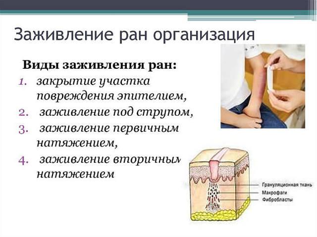 Чем лечить мокнущий ожог и что делать если он не заживает и мокнет, лечение мокнущих ран после ожоговой травмы