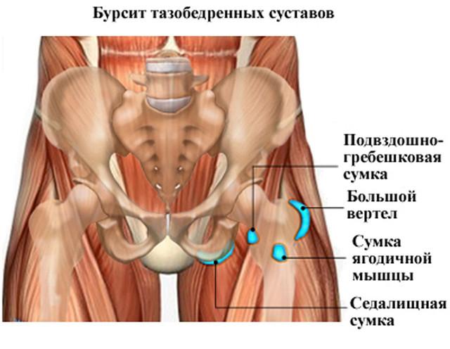 Отекла нога после замены тазобедренного сустава, можно ли греть и делать узи таза, почему хрустит и щелкает сустав