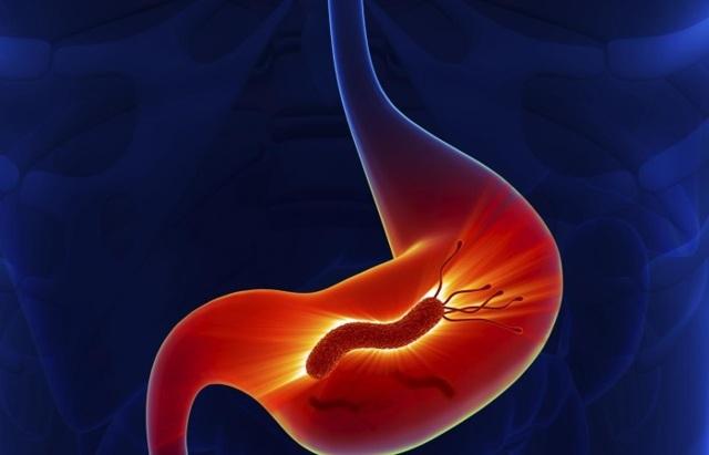 После чеснока болит желудок или живот — его употребление может вызывать еще и понос, тошноту или изжогу
