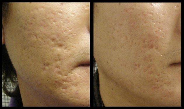 Крем от шрамов и рубцов на лице после прыщей, лучший крем для заживления и рассасывания рубцов после операции и ожогов