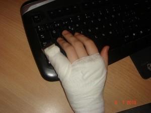 Перелом мизинца на руке: симптомы и лечение, сроки заживления и период реабилитации