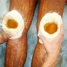 Воспаление сухожилия пальца руки — симптомы и способы лечения тендинита