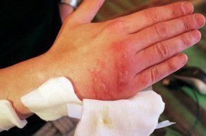Лечение обморожения: препараты и народные средства, оказание первой помощи