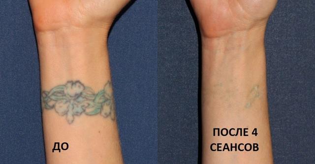 Остаются ли шрамы после удаления тату лазером, как свести татуировку в домашних условиях, рубцы от удаления татуажа