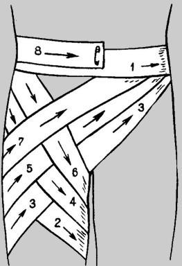 Колосовидная повязка на плечевой сустав: техника наложения, сроки использования