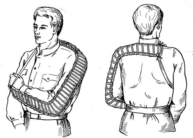 Правила наложения шин при переломах, как наложить шину Крамера и Дитерихса (алгоритм действий)