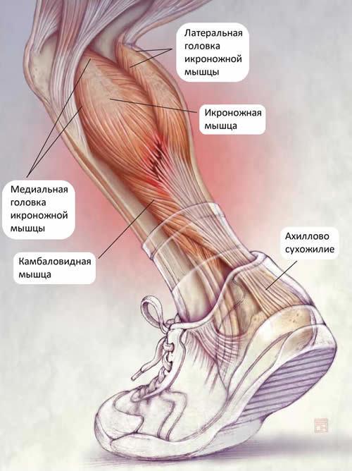 Надрыв икроножной мышцы — лечение и симптомы, реабилитация и сроки восстановления после повреждения