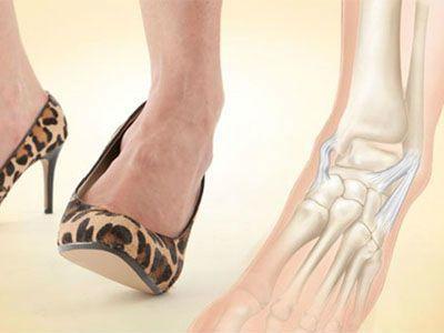 Надрыв связок голеностопа — лечение и симптомы, сколько заживает голеностопный сустав и реабилитация, как лечить связки стопы