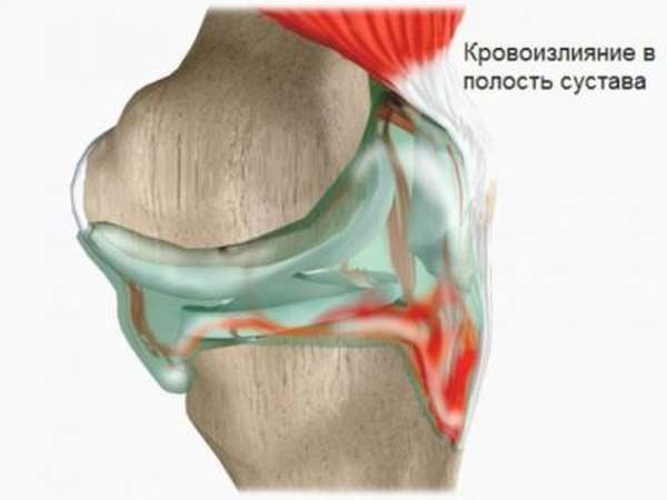 Гематома на ноге после ушиба: лечение в домашних условиях, хирургические методы