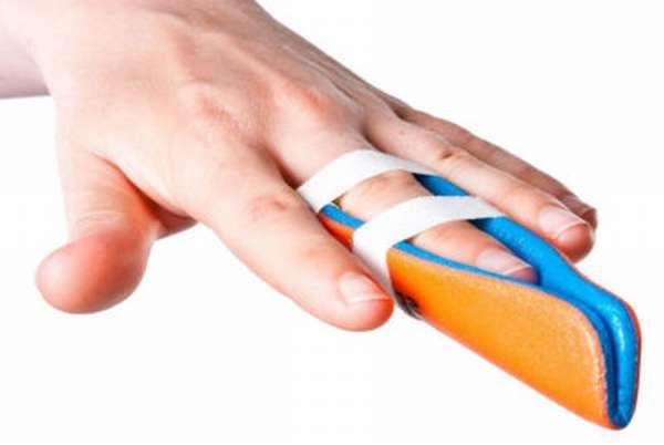 Признаки перелома пальца на руке, методы лечения и сроки реабилитации