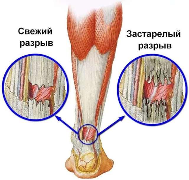 Частичный разрыв ахиллова сухожилия — симптомы, признаки полного разрыва и надрыва ахилла, последствия и причины травмы