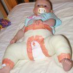 Вывих тазобедренного сустава у детей и новорожденных: симптомы, лечение и реабилитация