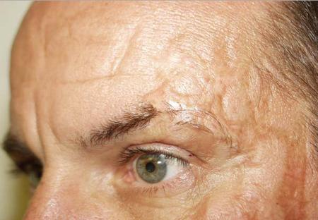 Шрамы от ожогов — как избавиться и убрать послеожоговые рубцы мазями и кремами, лечение и удаление шрамов лазером