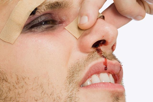 Рана на голове — чем обработать и что делать если ребенок рассек: бровь, лоб и подбородок