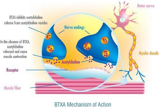Ботулизм: причины возникновения, симптомы заболевания и признаки заражения ботулизмом в продуктах