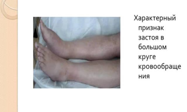 Первая помощь при сердечной недостаточности и что делать если отекают ноги при хронической СН, неотложная помощь при ОСН
