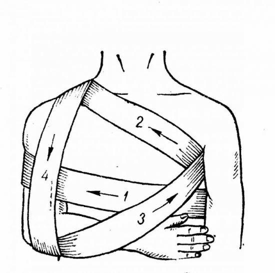 Повязка Дезо на плечевой сустав (фиксирующий бандаж): схема наложения и сроки использования