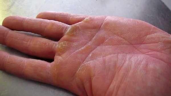 Мокнущая рана – чем лечить и как обработать, ранозаживляющие средства, народные методы лечения травм