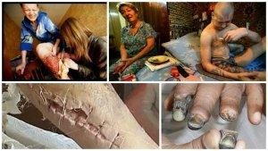 Крокодил (нарк вещество) — последствия и признаки употребления дезоморфина для организма человека
