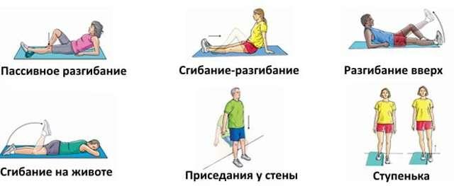 Разрыв крестообразной связки колена — сроки восстановления и реабилитация после операции (пластики)