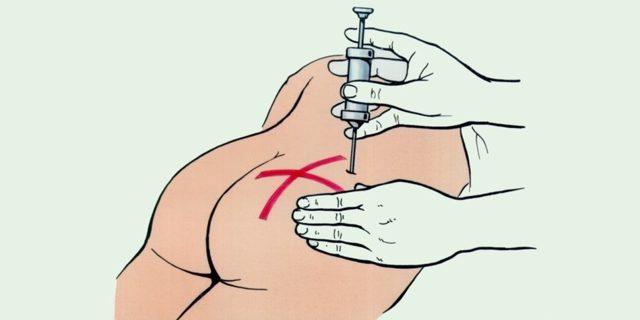 Как делать правильно укол в ягодицу ребенку и взрослому — схема зоны для внутримышечной инъекции в попу