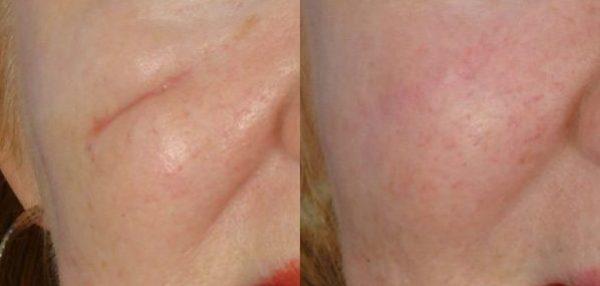 Гель от шрамов и рубцов — Кело-кот, Дерматикс и Контрактубек для лечения и рассасывания послеоперационных рубцов