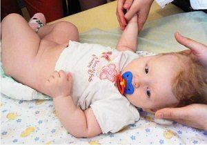 Подвывих и шейного позвонка у ребенка и новорожденного: симптомы и лечение шеи