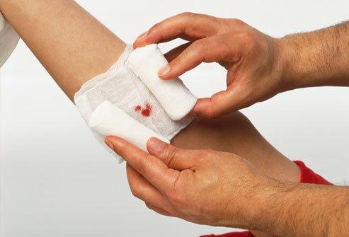 Перевязка чистой раны (послеоперационной): алгоритм проведения процедуры, снятие швов и уход за повязкой