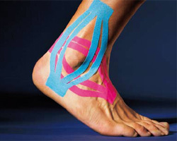 Тейпирование голеностопа при растяжении связок, как правильно наклеить кинезио тейп на голеностопный сустав и стопу