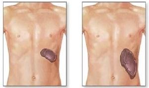 Селезенка — где находится и как болит, симптомы и причины боли у женщин и мужчин, признаки заболевания органа