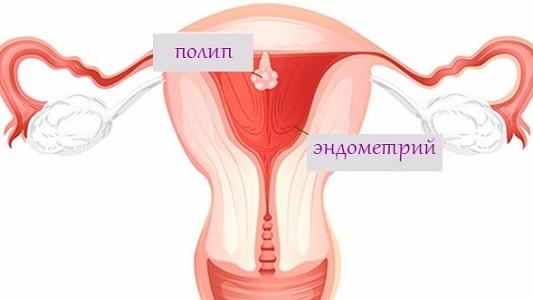 Маточное кровотечение при климаксе — как остановить, причины и лечение выделений из матки, кровоостанавливающие травы