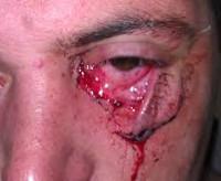 Первая помощь при рубленных ранах: признаки травмы, как обработать рану и чем лечить