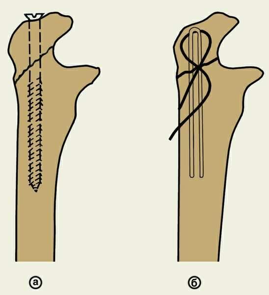 Перелом локтевого отростка со смещением и без: лечение и реабилитация после травмы