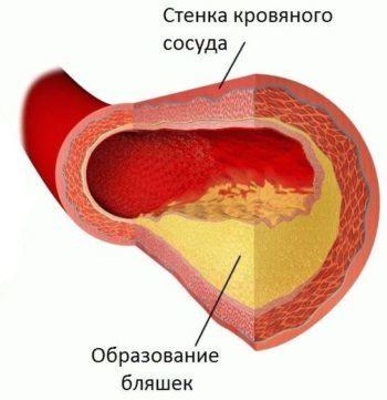 Место постановки горчичников при гипертоническом кризе