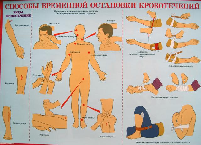 Какие существуют способы временной остановки наружных кровотечений: виды и методы прекращения кровоизлияний