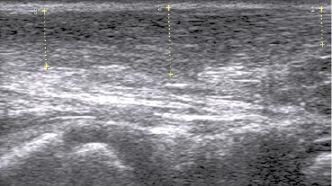 Удлинение ахилловых сухожилий у детей и взрослых, причины укорочения ахилла и последствия укороченного (короткого) сухожилия