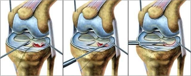 Разрыв заднего рога медиального мениска коленного сустава, лечение горизонтального и дегенеративного внутреннего мениска колена