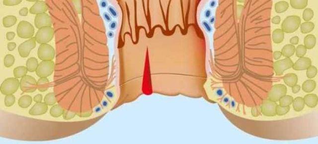 Кровотечение из заднего прохода — причины и лечение, как остановить сильное (обильное) анальное кровотечение