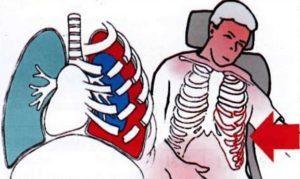 Неотложная помощь при проникающем ранении грудной клетки: признаки повреждений и алгоритм действий