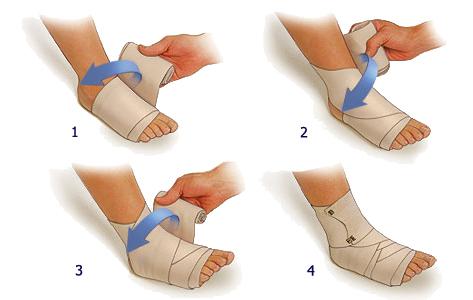 Повреждение связочного аппарата голеностопного сустава