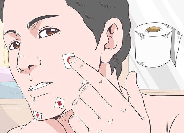 Как остановить кровь из пальца при порезе бритвой и ножом, что делать при сильном порезе и кровь долго не останавливается