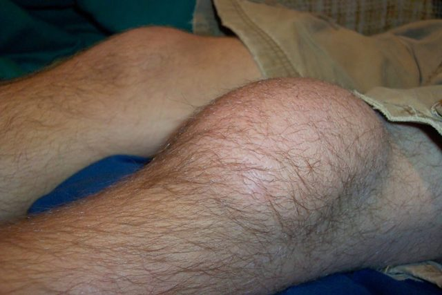 Надрыв связок коленного сустава — лечение и сроки восстановления, симптомы и признаки частичного надрыва боковой связки