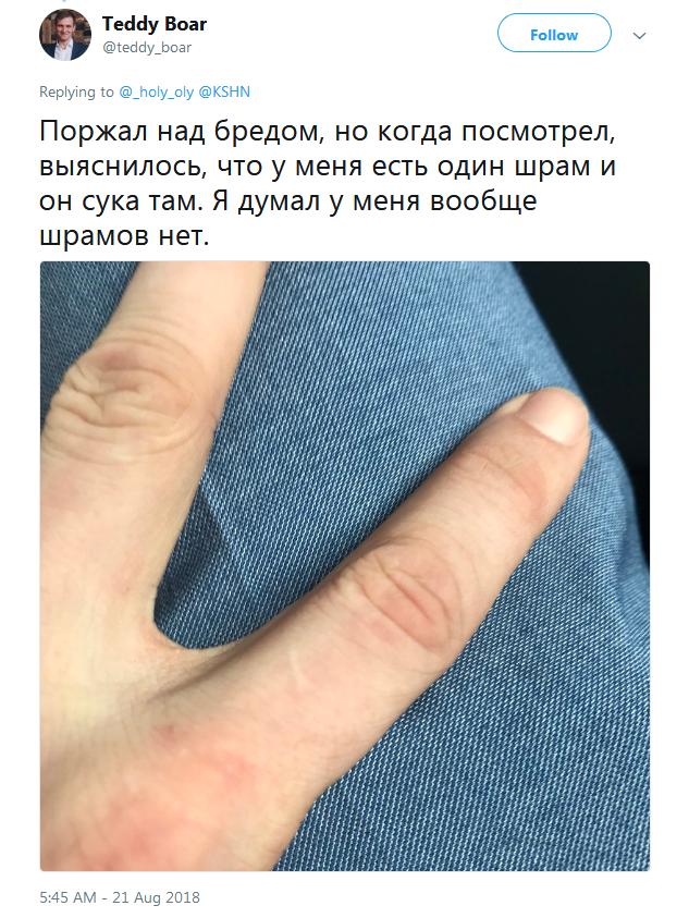 Шрам на левом указательном пальце у мужчин и женщин, откуда появляется рубец и что означает, как убрать шрам