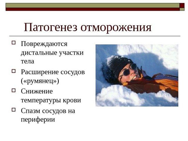 Первая помощь при обморожении кратко, особенности лечения детей, осложнения