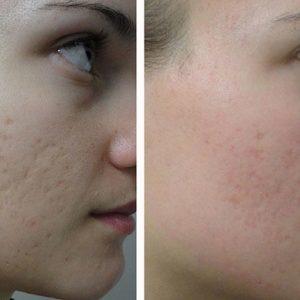 Из какой ткани состоят шрамы на коже, почему рубец стал белый и как его убрать, удаление рубцовой соединительной ткани