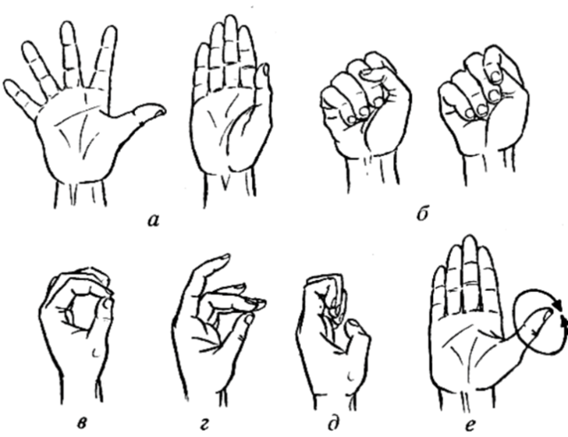 Перелом ключицы со смещением: период восстановления и лечения, как разработать руку