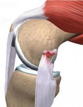 Надрыв задней поверхности бедра — сроки восстановления и лечение, симптомы отрыва и разрыва связок и мышц