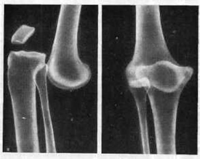 Вывих коленного сустава: симптомы и лечение, первая помощь при травме и реабилитация